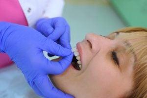 Patient Getting Cosmetic Porcelain Dental Veneers Ottawa