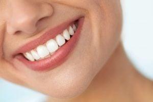 dental bonding smiling woman