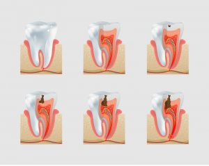 image showing the stages of a cavity forming