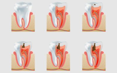 How Do Cavities Form in Your Teeth