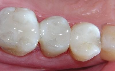 Cavity Fillings: The Difference Between White Fillings & Silver Fillings