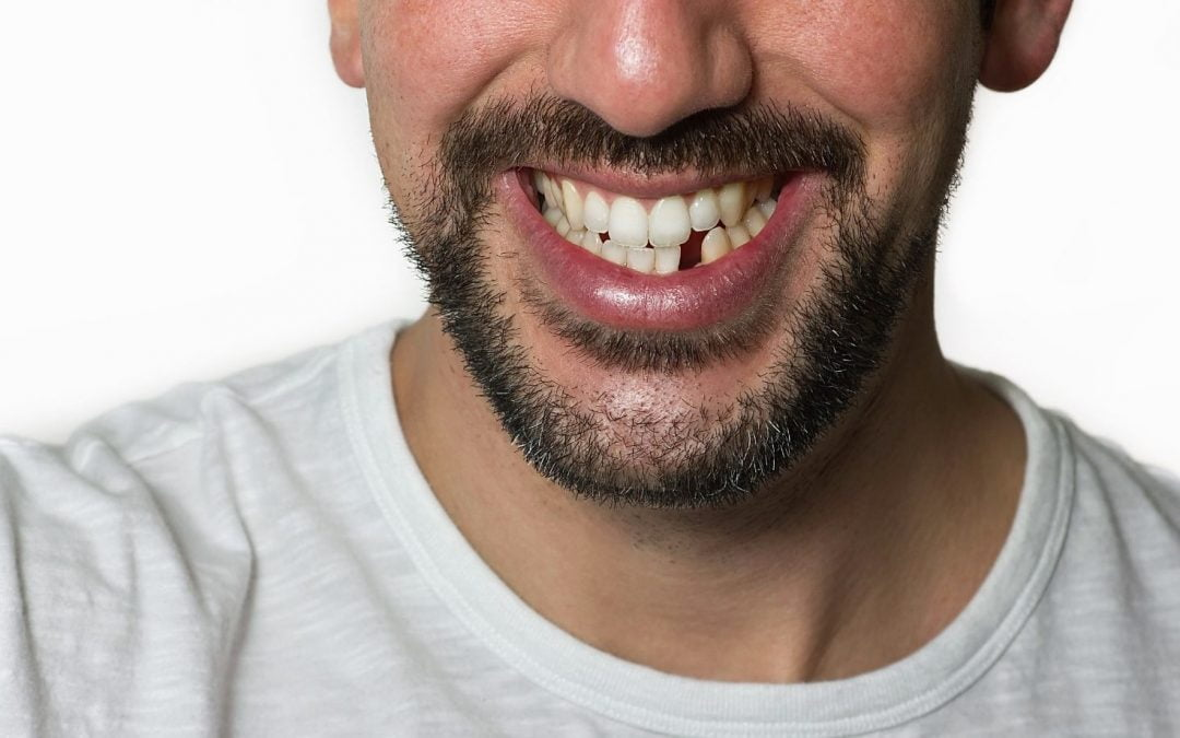 My Tooth Fell Out: What to Do When A Tooth Falls Out